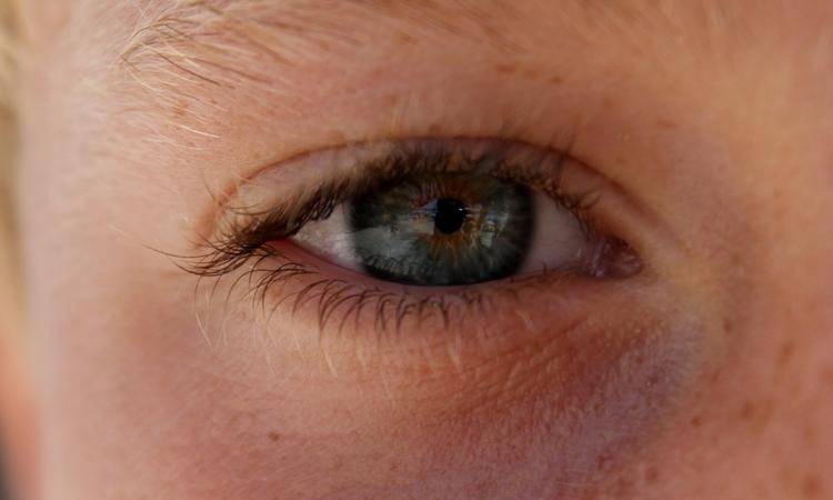 Il contorno occhi è la parte più delicata del viso